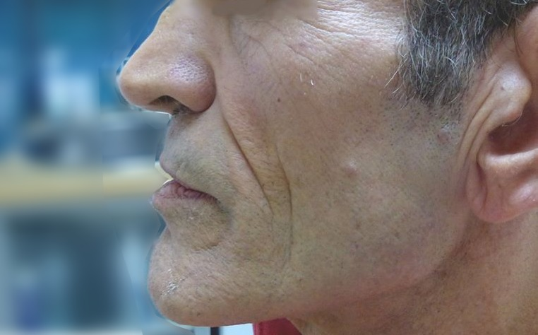 forts sillons nasogéniens sur un visage creux