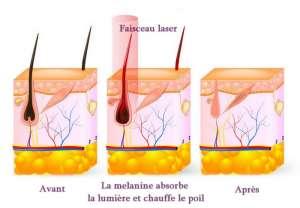 Principe de l'épilation laser